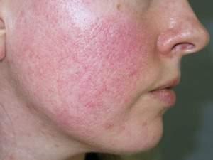 Lộ mao mạch là dấu hiệu da bị bào mòn và tổn thương nặng nề