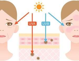 Tác hại của tia cực tím UVA, UVB đến da
