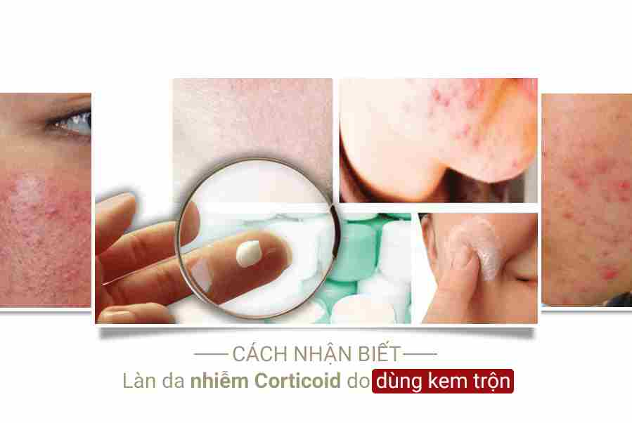 Da nhiễm corticoid khi dùng kem trộn