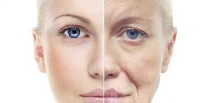 Tẩy da chết hóa học làm sạch - ngừa mụn - trẻ hóa da