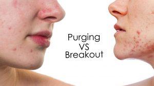 Đẩy mụn (purging) và nổi mụn (break out)