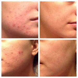 Tác dụng của Kem trị mụn Murad Rapid Relief Acne Spot Treatment