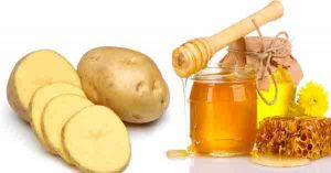 Cách trị mụn đầu đen bằng mật ong và khoai tây