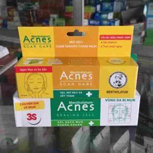 Kem trị mụn Acnes được bán rộng rãi tại các hiệu thuốc