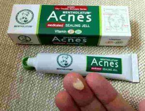 Kem trị mụn Acnes Sealing Jell trị mụn kháng khuẩn