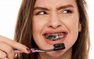 Than hoạt tính trắng răng